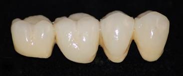 prothese dentaire fixe bridge